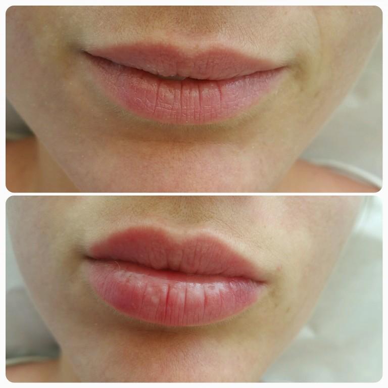 Легкое увеличение губ